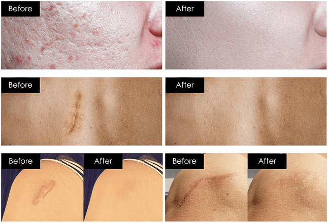 Advanced Scar Removal Cream Pictures