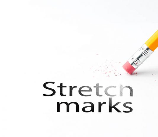 Remove Stretch Mark