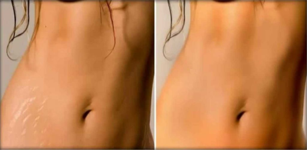 How To Male Stretch Markss Less Noticeable