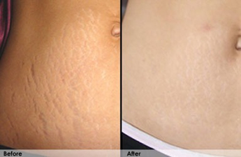 revito stretch mark before and after