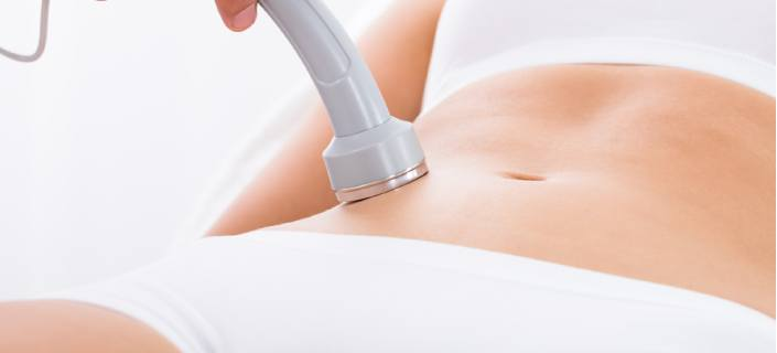 stretch mark laser therapy
