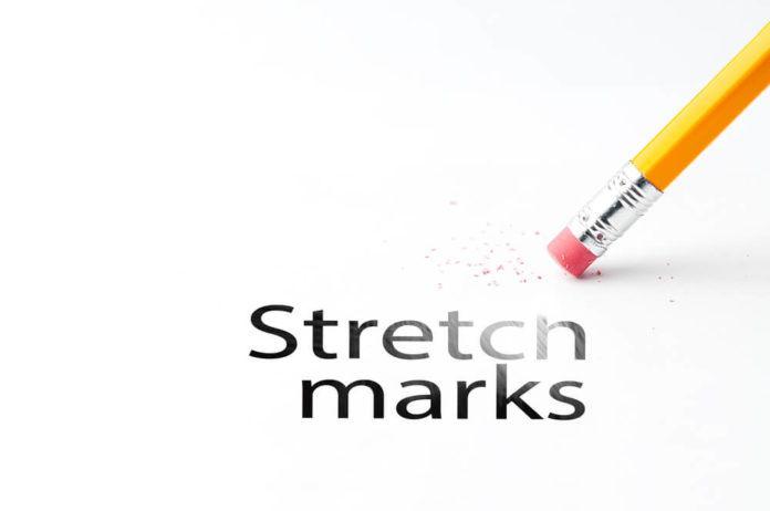 17 Simple Ways To Get Rid Of Stretch Marks Fast Perfect Body Mate