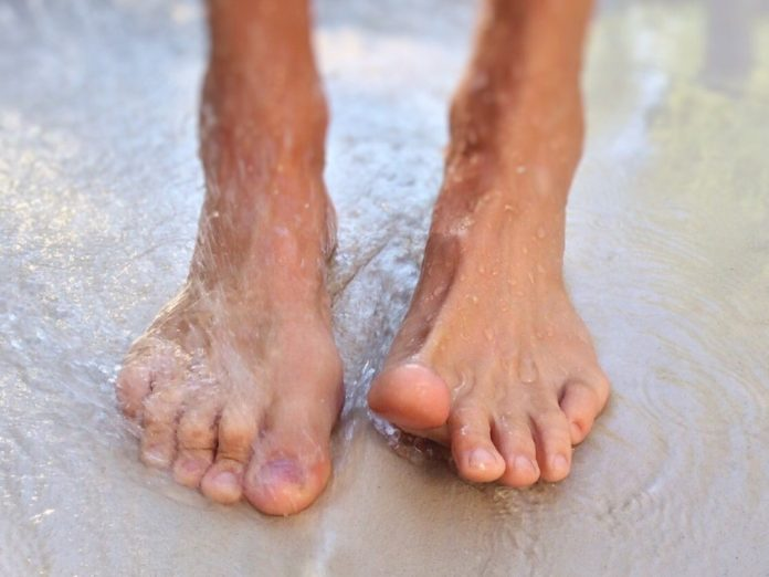 7 Definitive Toenail Fungus Treatments (That Work) - Perfect Body Mate